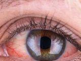 Drawing Bloodshot Eyes 22 Best Bloodshot Eyes Images Eyes Paintings Writing Inspiration