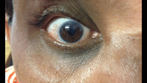 Drawing Of Eye Drops Reduced Corneal Haze is Evident Od Day 5 Of Treatment with