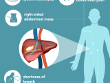 Drawing Of Heart Cancer Liver Cancer Signs Symptoms and Complications