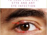 Drawing Out Eye Infection Colloidal Silver Heal Eye Infections Fast How to Use It Safely and