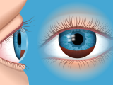 Drawing Out Eye Infection Hyphema